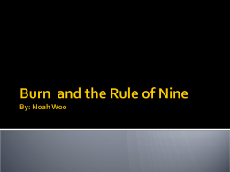 Burn and the Rule of Nine By: Noah Woo