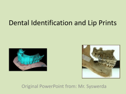 Dental Identification and Lip Prints