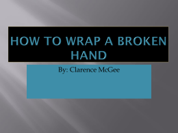 Clarence McGee How to wrap a broken hand - King-C
