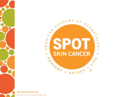 SPOT Skin Cancer Quiz Power Point