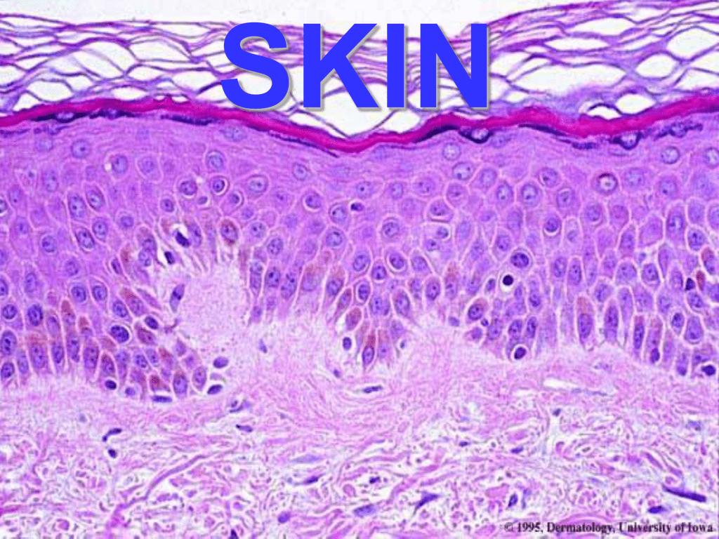 Ch25-Skin - Medical School Pathology