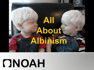 All About Albinism Presentation