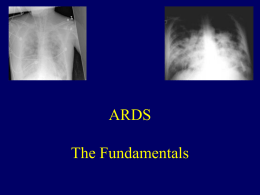 ARDS: The Fundamentals