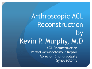 PowerPoint Presentation - Arthroscopic ACL