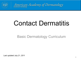 Contact dermatitis - American Academy of Dermatology