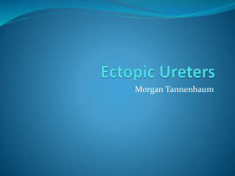 Ectopic Ureters
