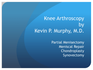 PowerPoint Presentation - Knee Arthroscopy Kevin
