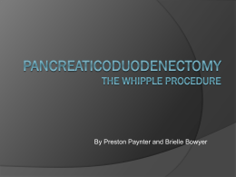 Pancreaticoduodenectomy