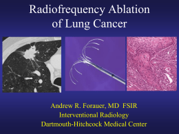 Radiofrequency Ablation of Lung Cancer