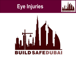 Eye injuries - Safety Awakenings