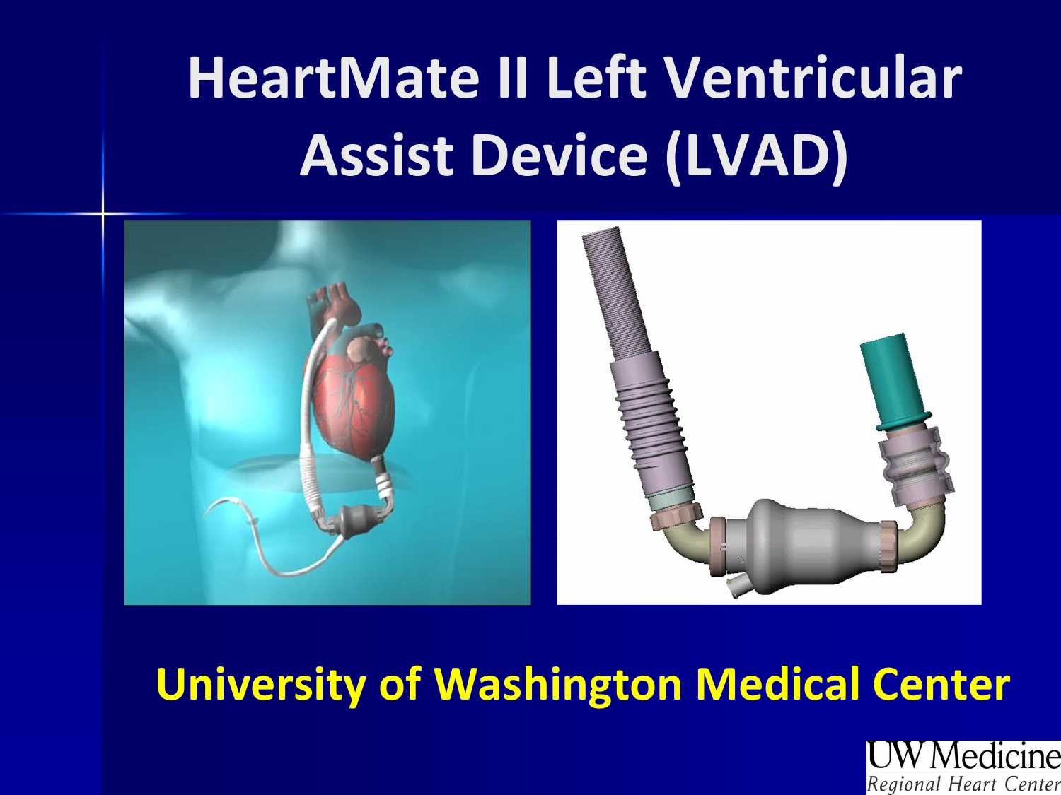 HeartMate II Left Ventricular Assist Device (LVAD)  Pivotal Trial