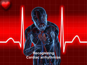Arrhythmias - Modest Mango