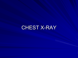 Chest X-Ray - Yale School of Medicine