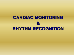 Cardic monitoring, rhythm recognition