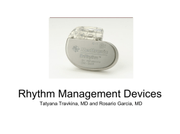 Rhythm management devices