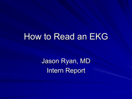 How to Read an EKG