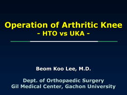 Operation of arthritic knee