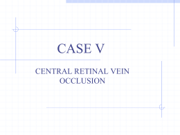 Central Retinal Vein Occlusion (Powerpoint)