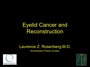 Eyelid Cancer and Reconstruction