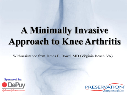 Shower rebuild kits a minimally invasive approach to knee arthritis sponsored by fandeluxe Images