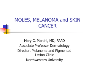 Moles and Melanoma