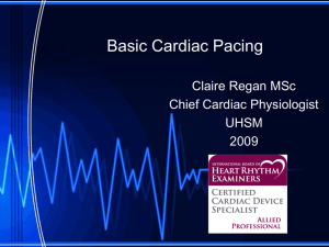 Basic Cardiac Pacing