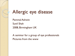 simple allergic conjunctivitis