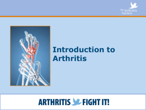 Introduction to Arthritis