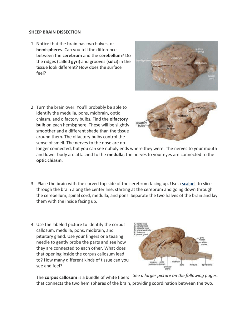 Sheep Brain Dissection Instructions