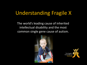 Understanding-FXS-Presentation-1st-may-201