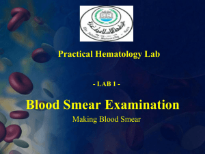 I- Preparation Of Blood Smear