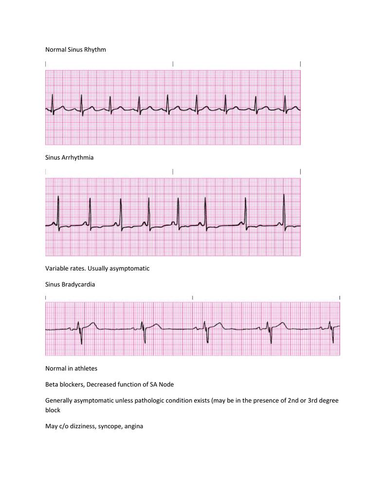 Abnormal EKG study guide comp