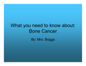 What you need to know about: Bone Cancer By: Mrs. Boggs