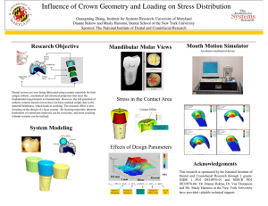 Influence of Crown Geometry and Loading on Stress Distribution