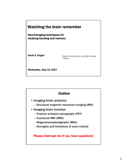 Watching the brain remember Outline • Imaging brain anatomy • Imaging brain function