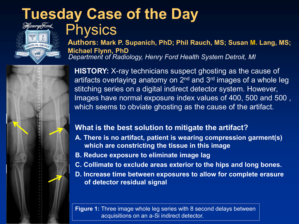 Tuesday Case of the Day Physics