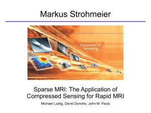 Sparse MRI: The Application of Compressed Sensing for Rapid MRI