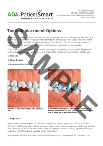 ADA Patient Smart | Tooth Replacement Options