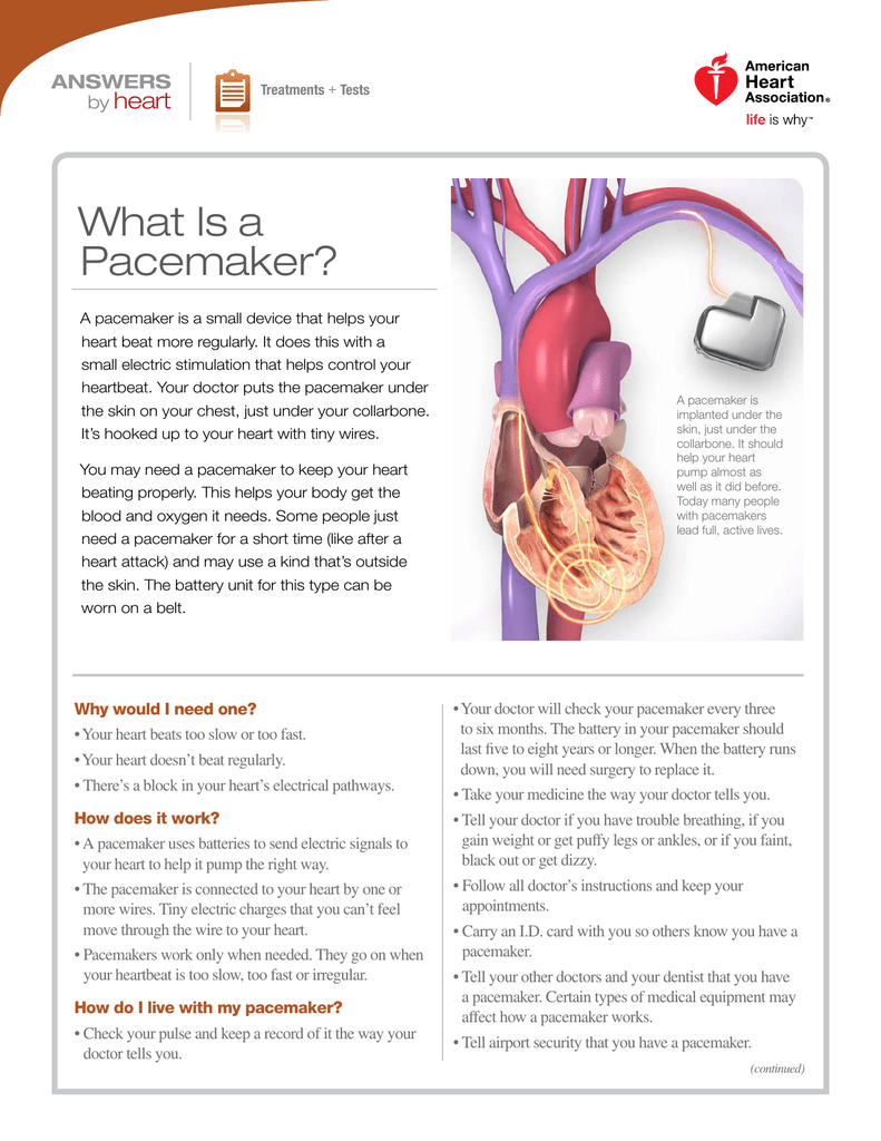 Pacemakers And Microwaves >> What Is A Pacemaker American Heart Association