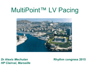 MultiPoint™ Pacing - Rhythm congress 2017
