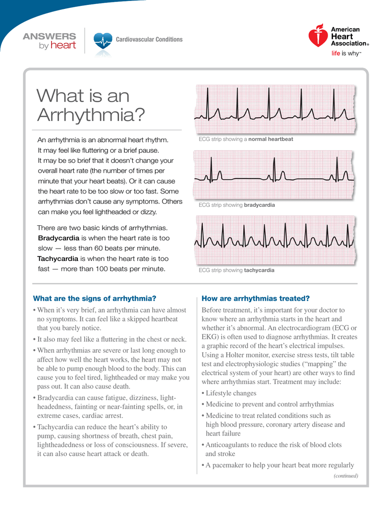 What is an arrhythmia