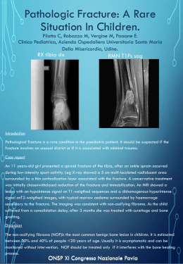 Pathologic Fracture: A Rare Situation In Children.