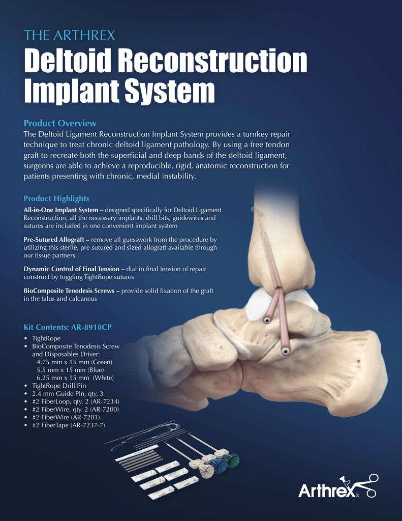 The Arthrex Deltoid Reconstruction Implant System