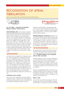 recognition of atrial fibrillation